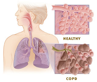 Natural COPD remedy