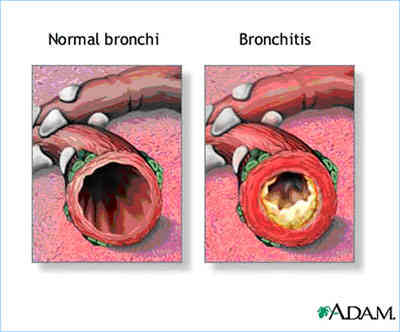 Bronchitis Natural Therapy