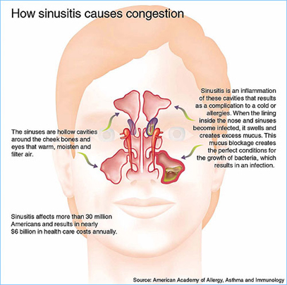 Natural Sinusitis Remedy
